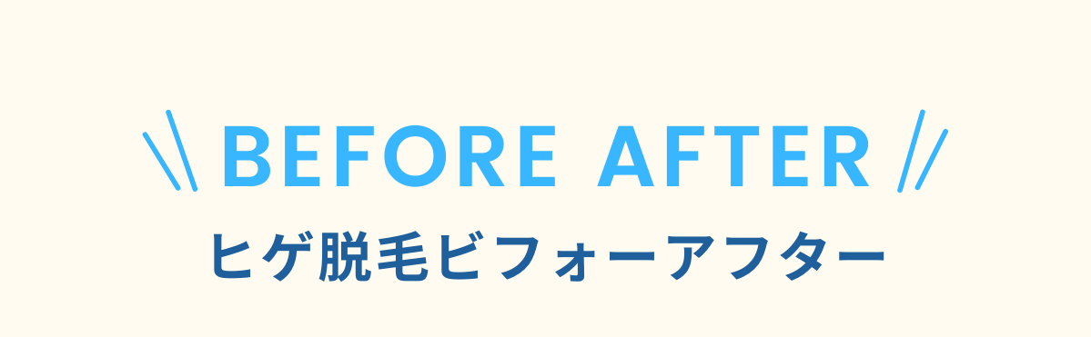 BEFORE AFTER!ひげ脱毛ビフォーアフター!